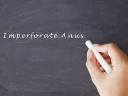 Imperforate Anus - 3 Nursing Diagnosis and Treatment