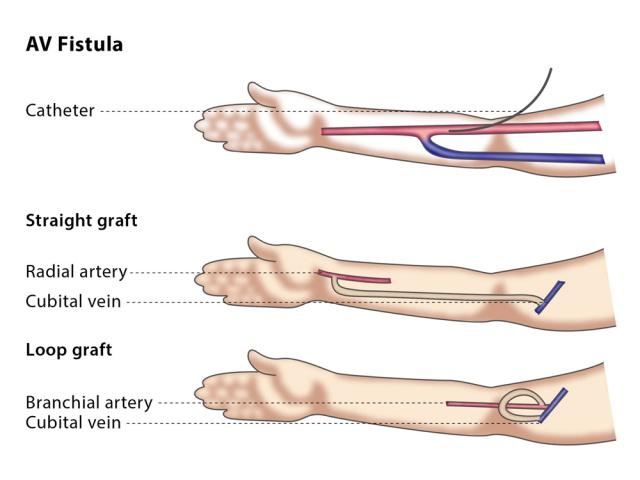 HD vascular access 2