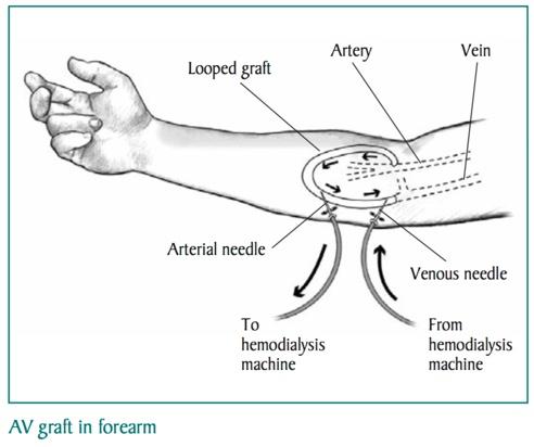 HD vascular access 3