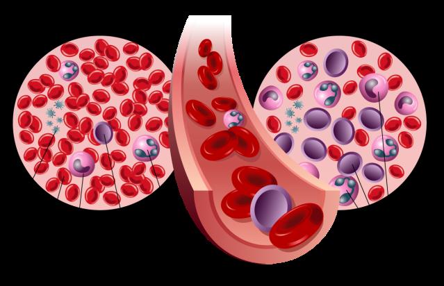 Leukemia 2